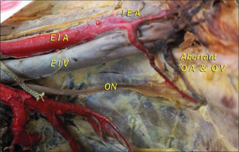 Figure 2: Aberrant obturator artery from the inferior epigastric artery and aberrant obturator vein draining into the external iliac vein