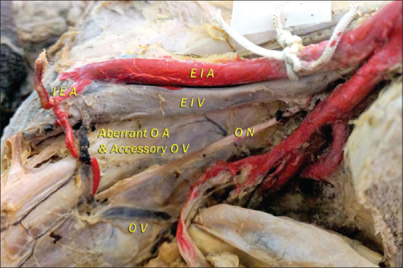 Figure 3: Aberrant obturator artery from the inferior epigastric artery and accessory obturator vein draining into the external iliac vein