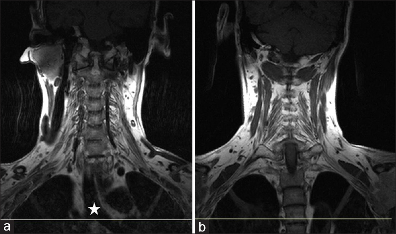 Figure 3: T1-weighted coronal images. (a) Reference line across carina (star). (b) Reference line extending up to the dorsal vertebra